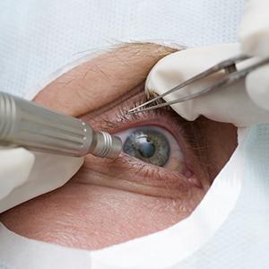 cataracte tunisie