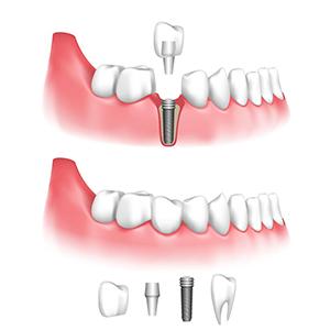 implants dentaire tunisie