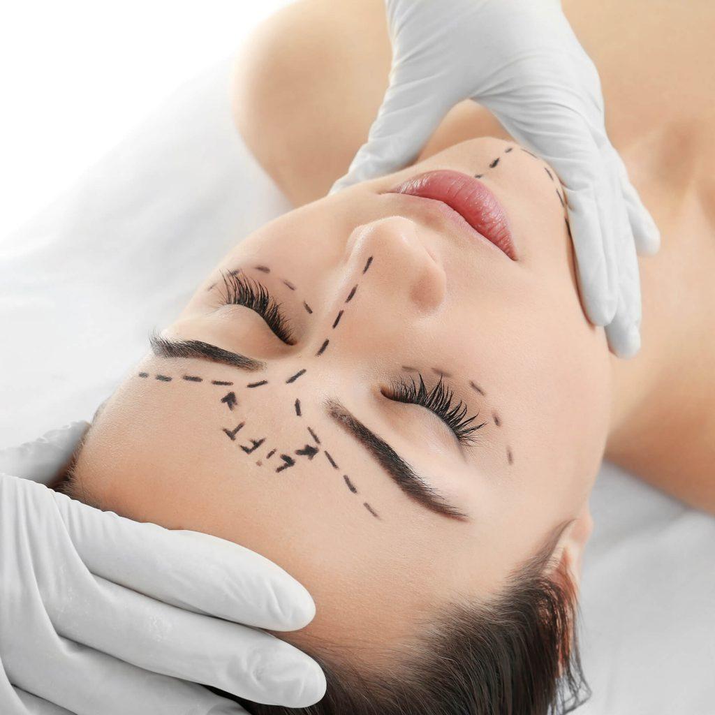 lifting lipofilling visage